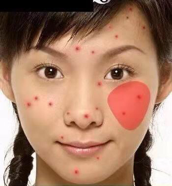 左边脸颊长痘的原因