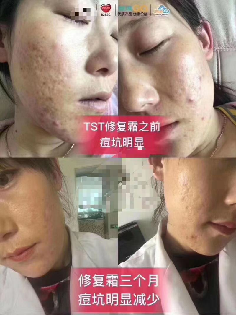 TST修护精华霜修复痘坑反馈