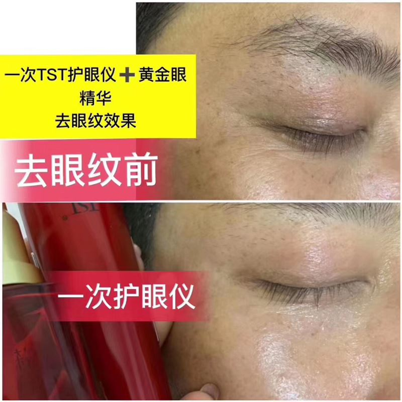 TST黄金眼精华的使用效果反馈