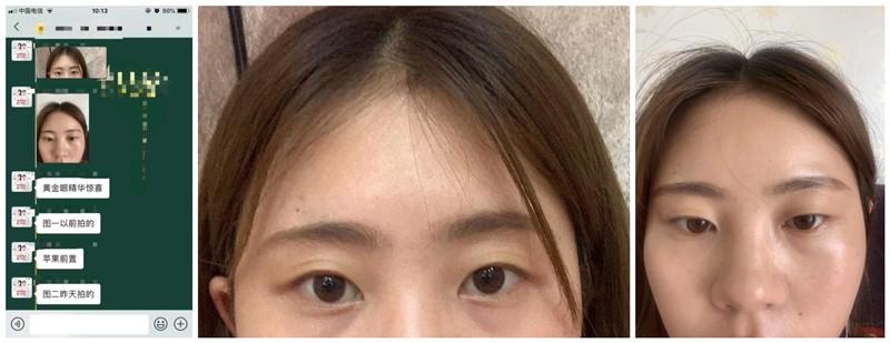 TST黄金眼精华黑眼圈+眼袋反馈