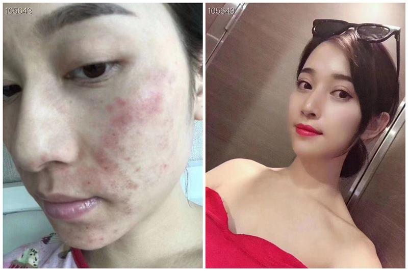 TST修复霜修复激素脸