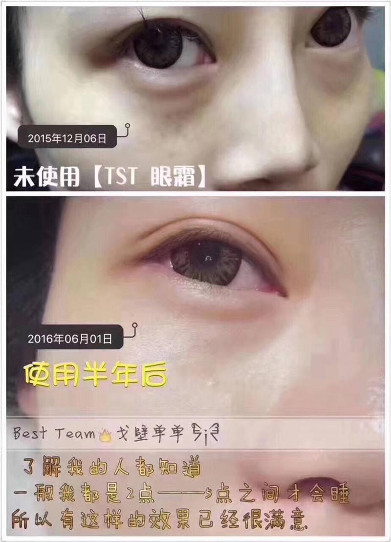 TST六胜肽眼霜
