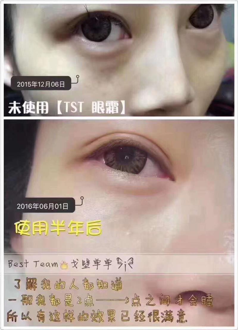 TST眼霜反馈️:改善眼袋