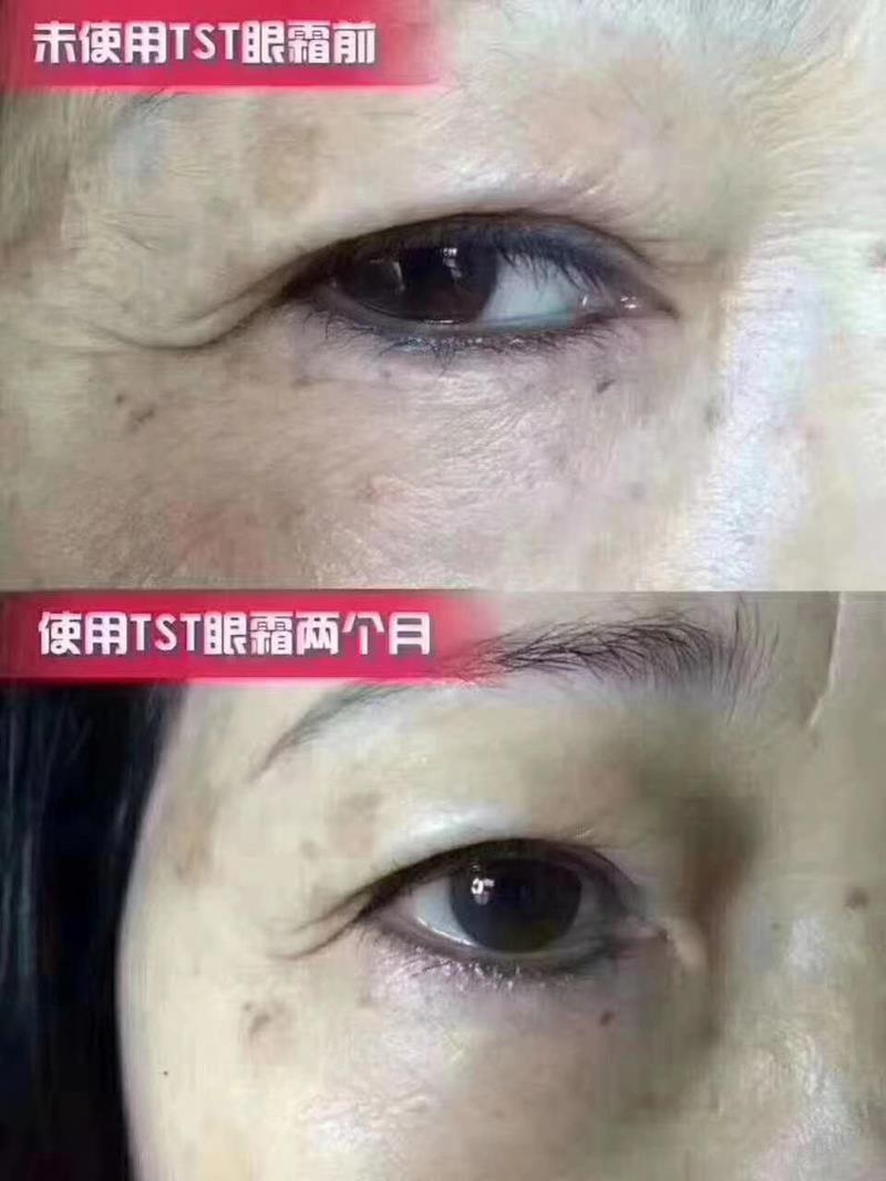 TST眼霜反馈️:改善细纹