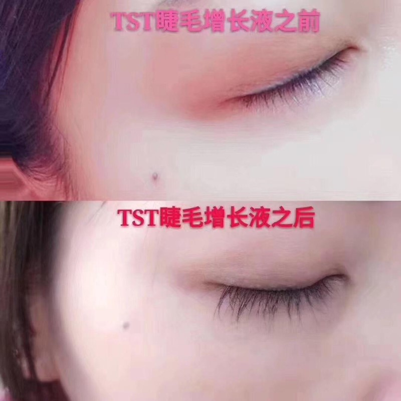 TST双头睫毛滋养液反馈