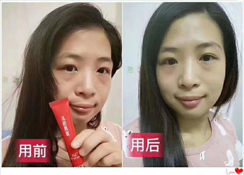 TST浓缩修护眼部精华霜反馈: