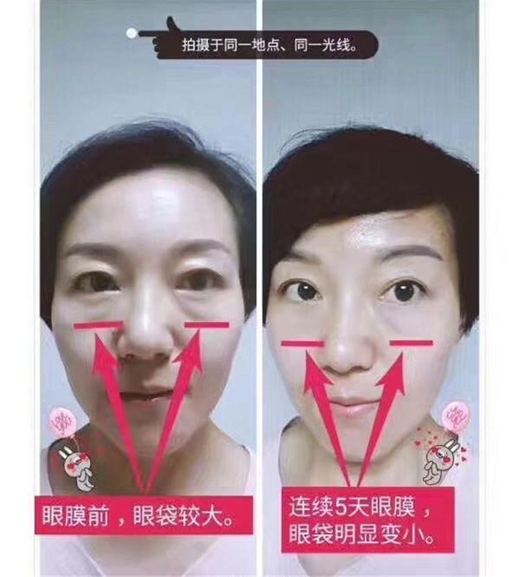 TST最好的眼膜反馈