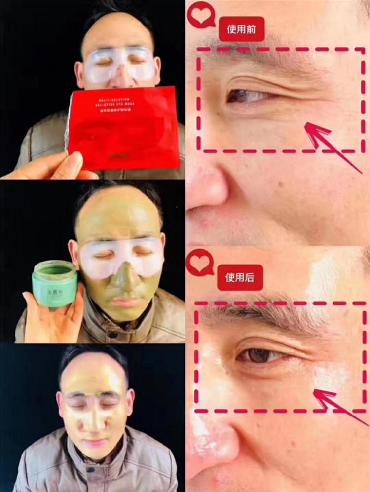 TST眼膜反馈