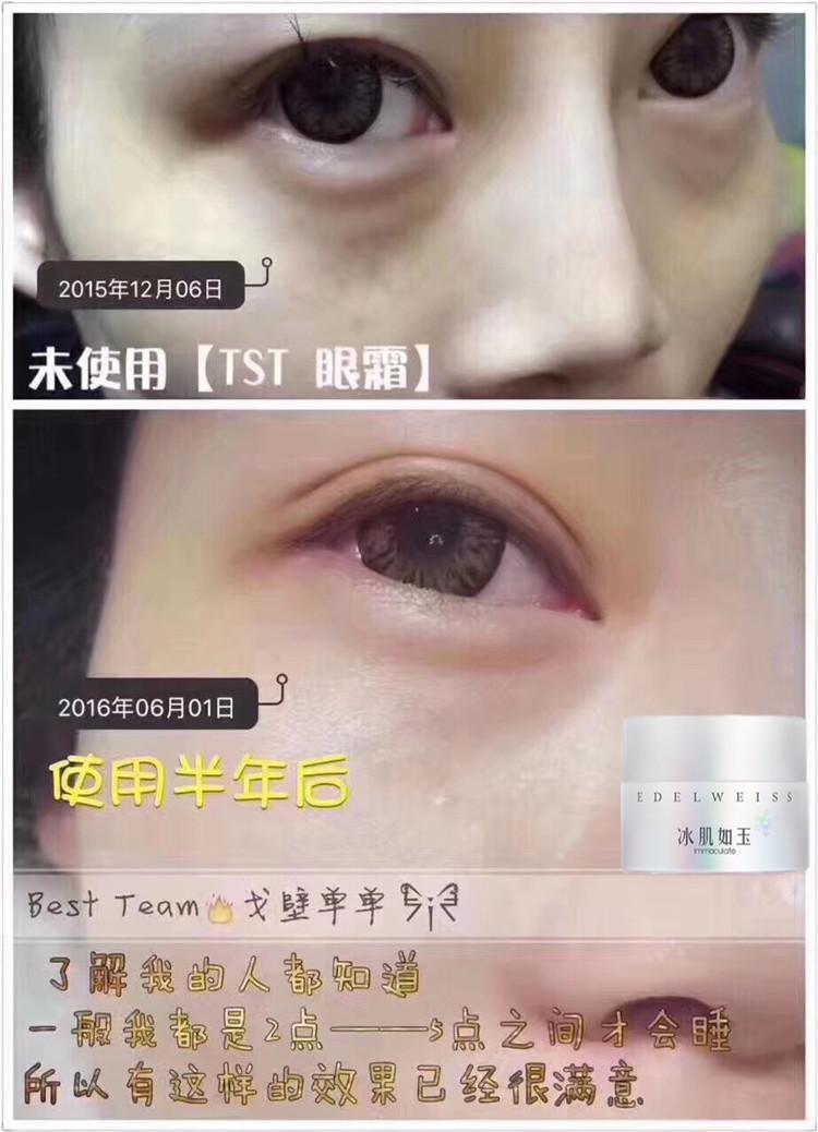 TST六胜肽眼霜反馈️:改善眼袋