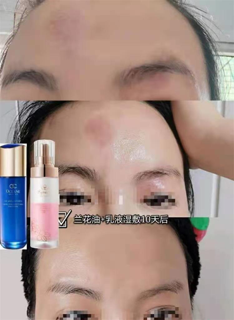 TST欧希纳护肤品反馈